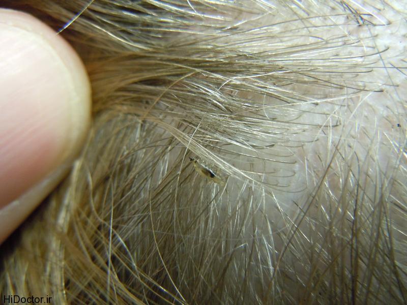 شپش سر چیست؟ + روش های پیشگیری و درمان