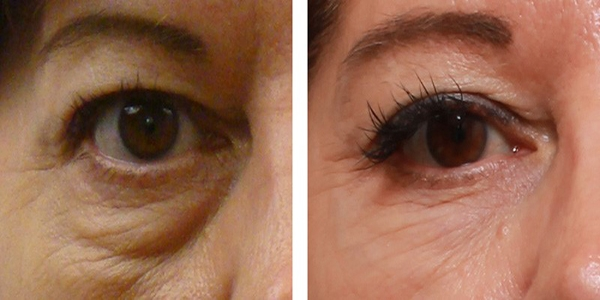 پف زیر چشم را چگونه درمان کنیم؟