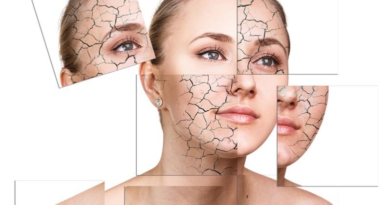 از بین بردن خشکی پوست با مرطوب کننده های طبیعی و خانگی