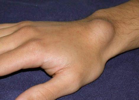 کیست مچ دست