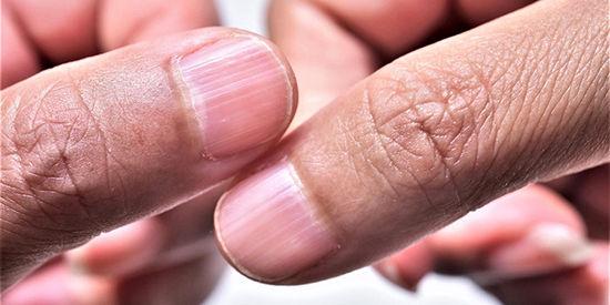 ناخن شیار شیار چیست و چگونه درمان میشود؟