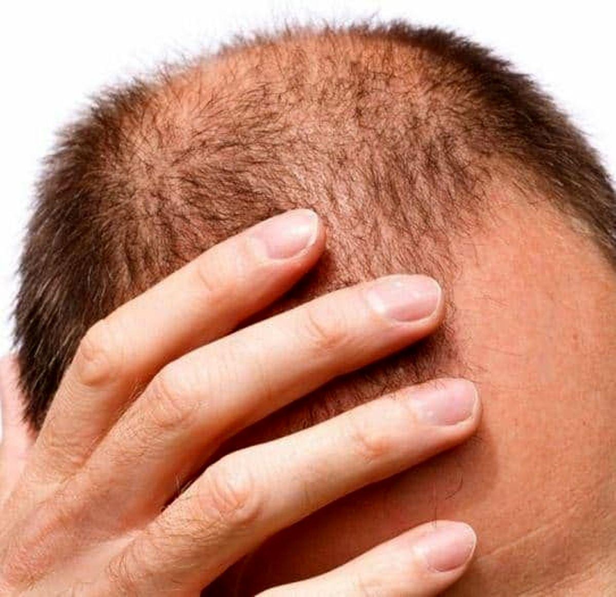 آیا کمبود مو را می توان نقص عضو دانست؟