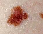 عوامل خطرناک سرطان پوست را جدی بگیرید