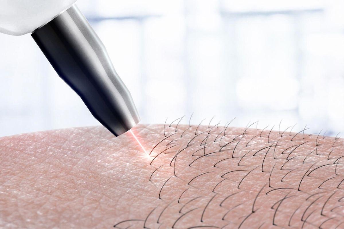 چه پوستی و چه لیزری؟+مزایا و معایب انواع لیزر