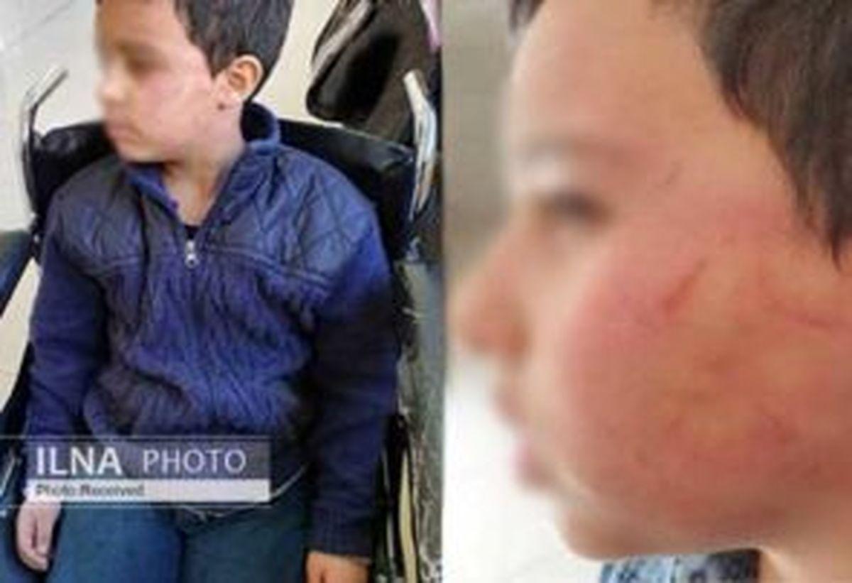 تنبیه بدنی دانشآموز ۱۰ ساله توسط معلم ورزش