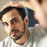 چگونه با ریزش مو مقابله کنیم