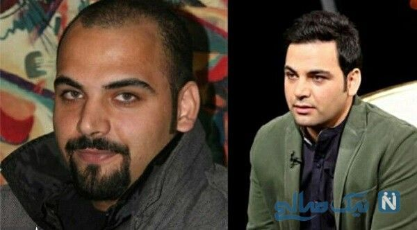 احسان علیخانی قبل و بعد از کاشت مو +عکس