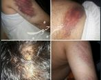 تصاویری وحشتناک از حمله خانواده دانشآموز شلاق خورده به معلم دبستان شهرستان کارون