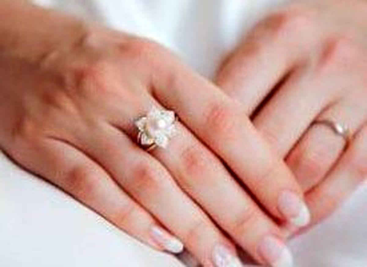 راز دست های زیبا و جوان چیست