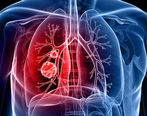 داروی درمان سرطان ریه ساخته شد
