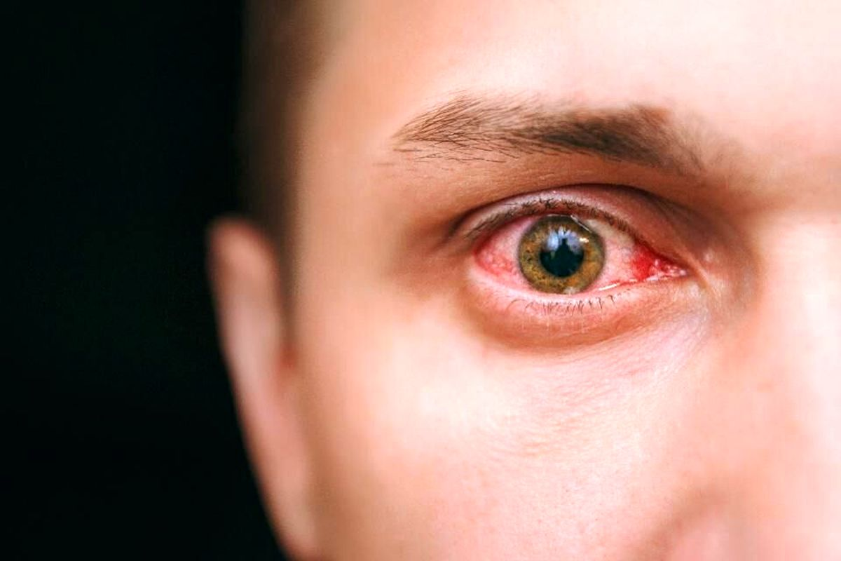 کرونا | قرمزی چشم از علایم کرونا است