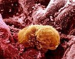 ۳۰ تا ۵۰ درصد سرطانها ارثی هستند