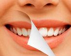 دندان هایتان را با این ادویه سفید کنید