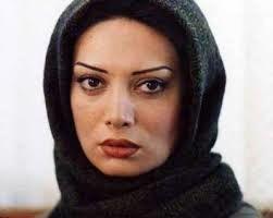 نگار فروزنده | چهره جدیدش بعد از جراحی زیبایی +عکس