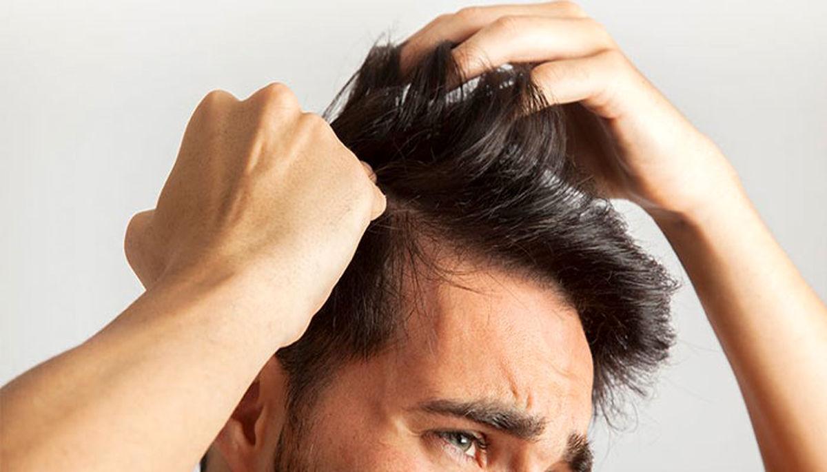 مردان چگونه از ریزش موهایشان جلوگیری کنند