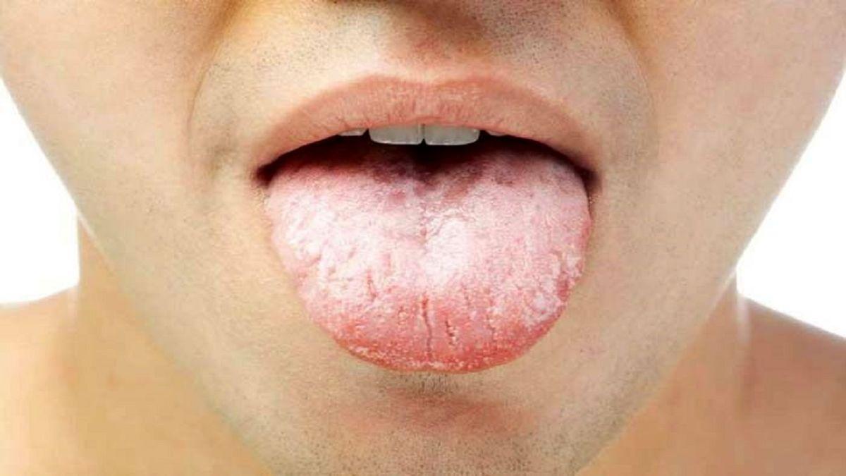 دلایل تلخی دهان را بشناسید