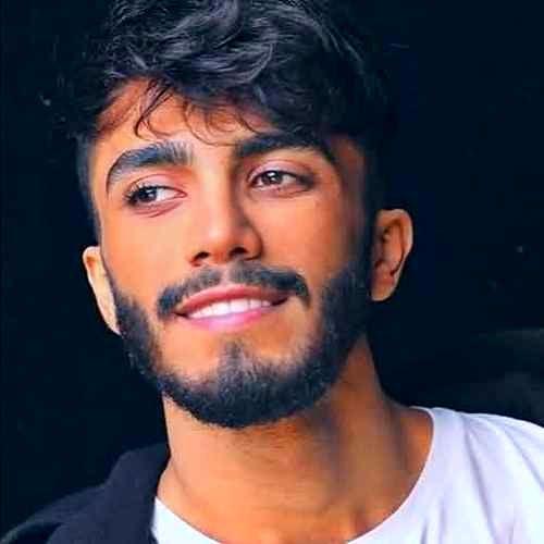 تغییر چهره یهویی مهراد جم خواننده نسل جوان + عکس دیدنی