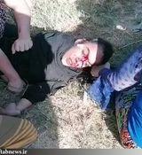 وضعیت دختر آبادانی بعد از ضرب و شتم + تصاویر ناراحت کننده