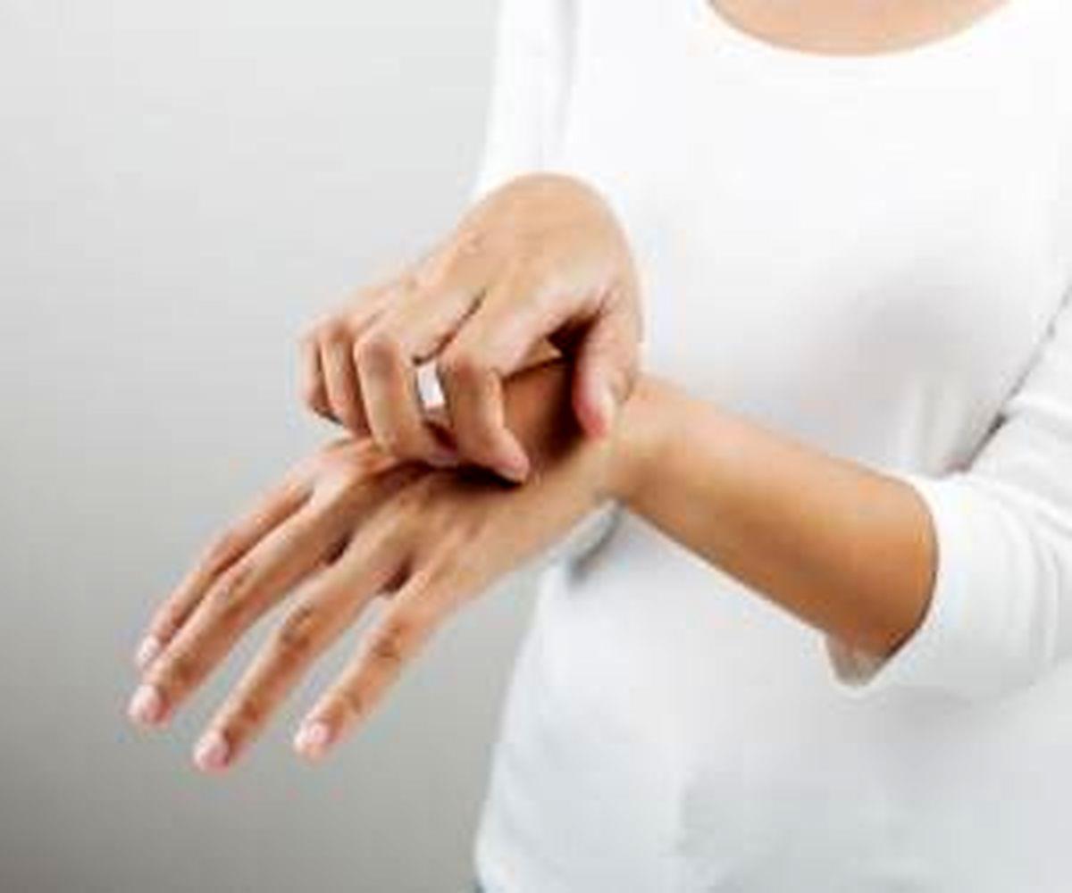 این بیماران مراقب خطر قارچ پوستی باشند