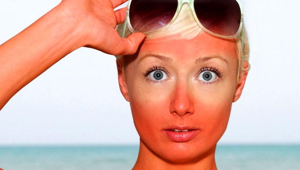 درمان آفتاب سوختگی با روش های خانگی