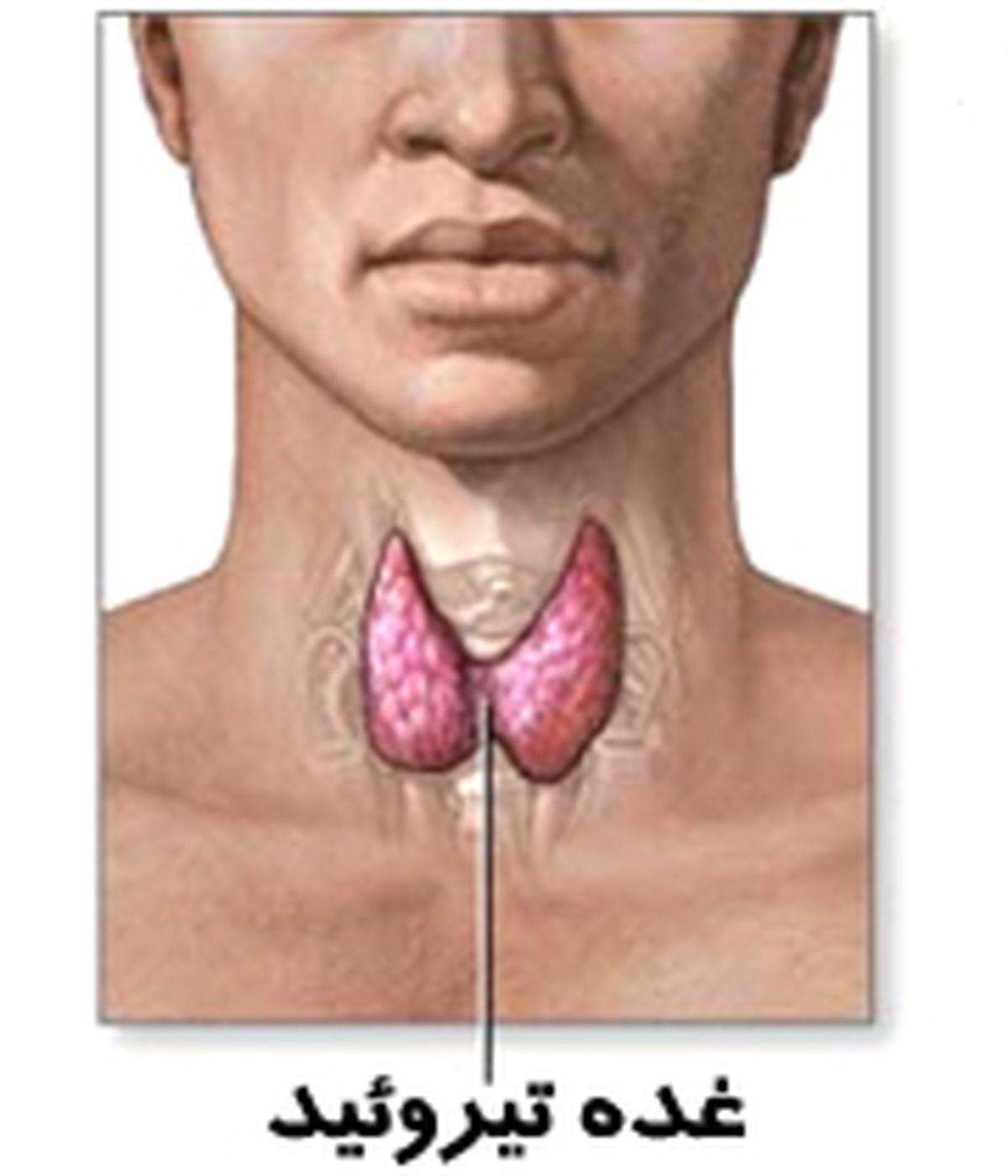 داروی لووتیروکسین برای کمکاری تیروئید مفید است