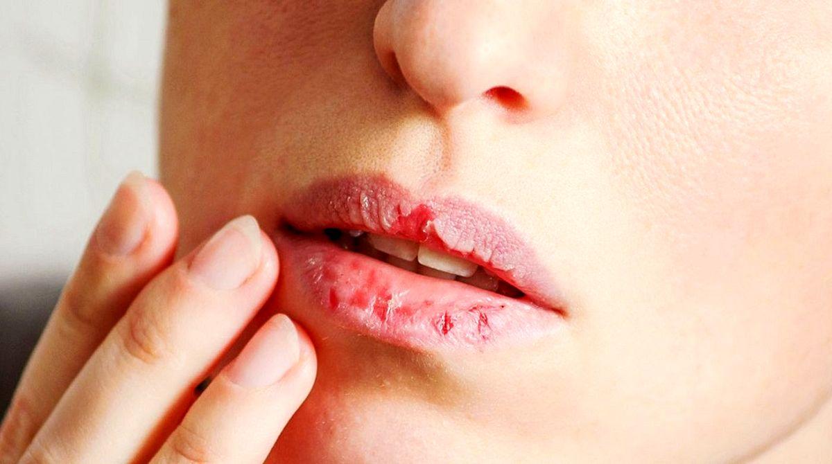 ویروس کرونا   آیا خشکی دهان از علائم ابتلا به آلودگی است؟