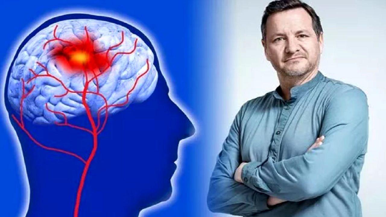۵ راهکار برای جلوگیری از سکته مغزی
