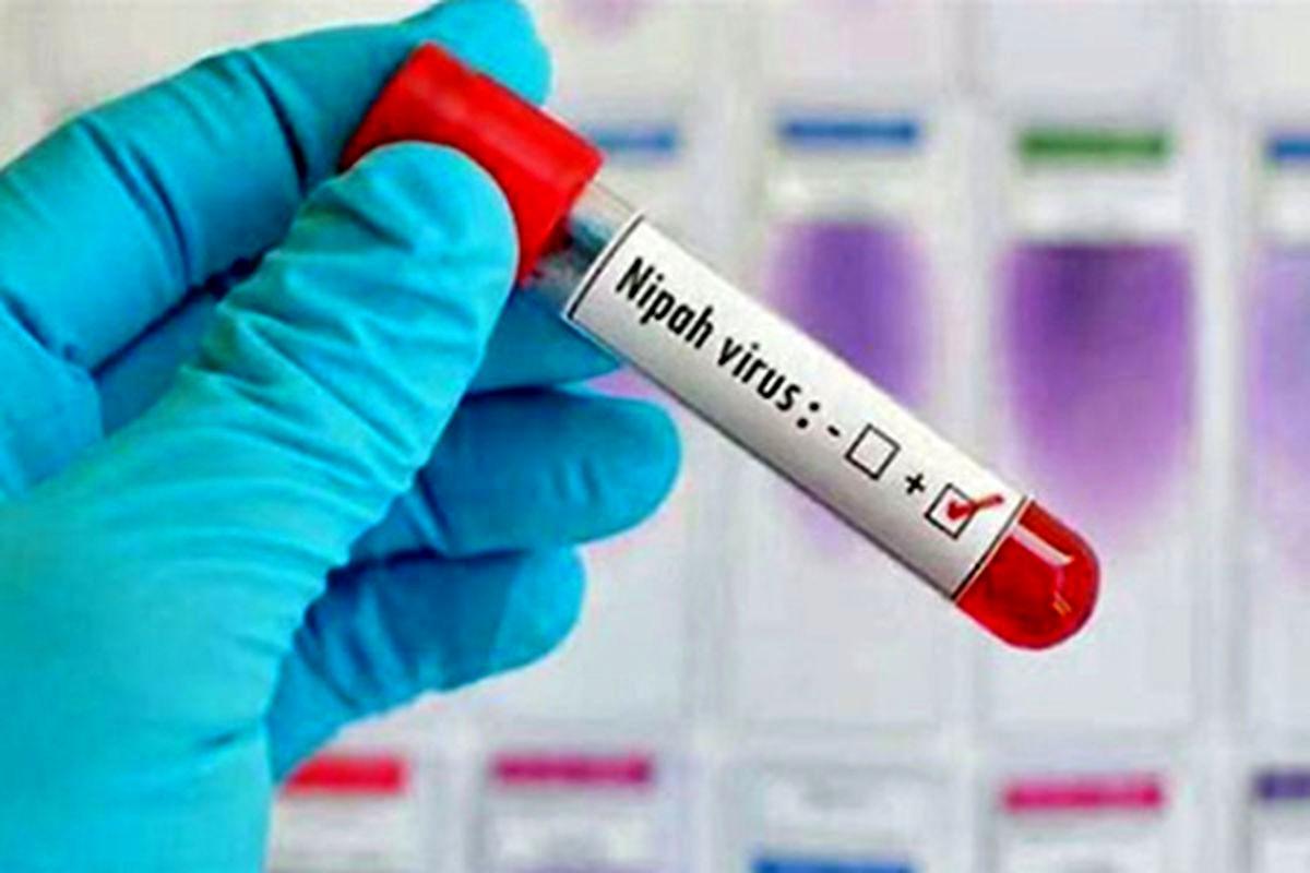 ویروس کشنده نیپا چیست؟ + علایم و درمان