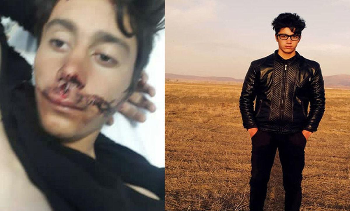 ماجرای آزار و قتل دو ایرانی در خاک ترکیه ایرانیان را عصبانی کرد + ویدئو