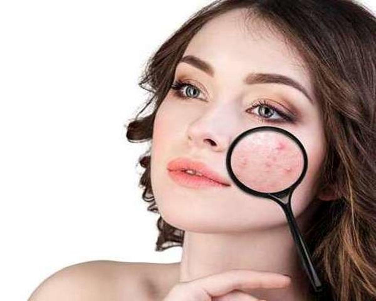 با این ماسک های خانگی طبیعی پوستتان را جلا دهید