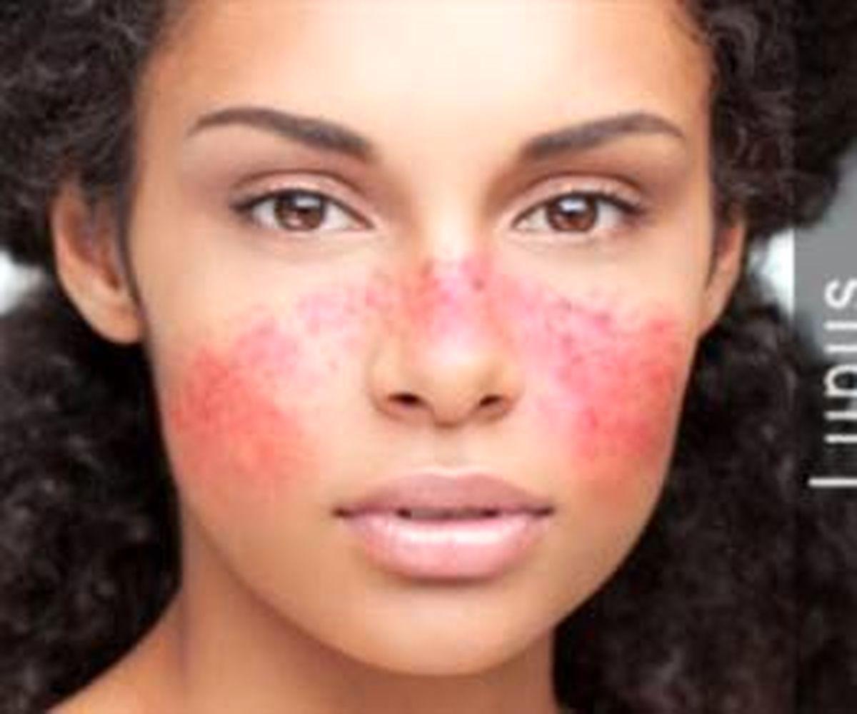 بیماری پوستی لوپوس چیست ؟ + 10 علائم اولیه