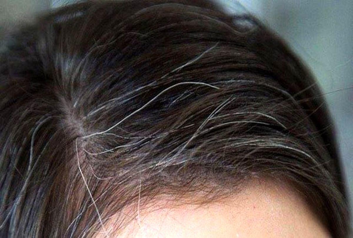 میوههایی که جلوی سفید شدن مو را میگیرند