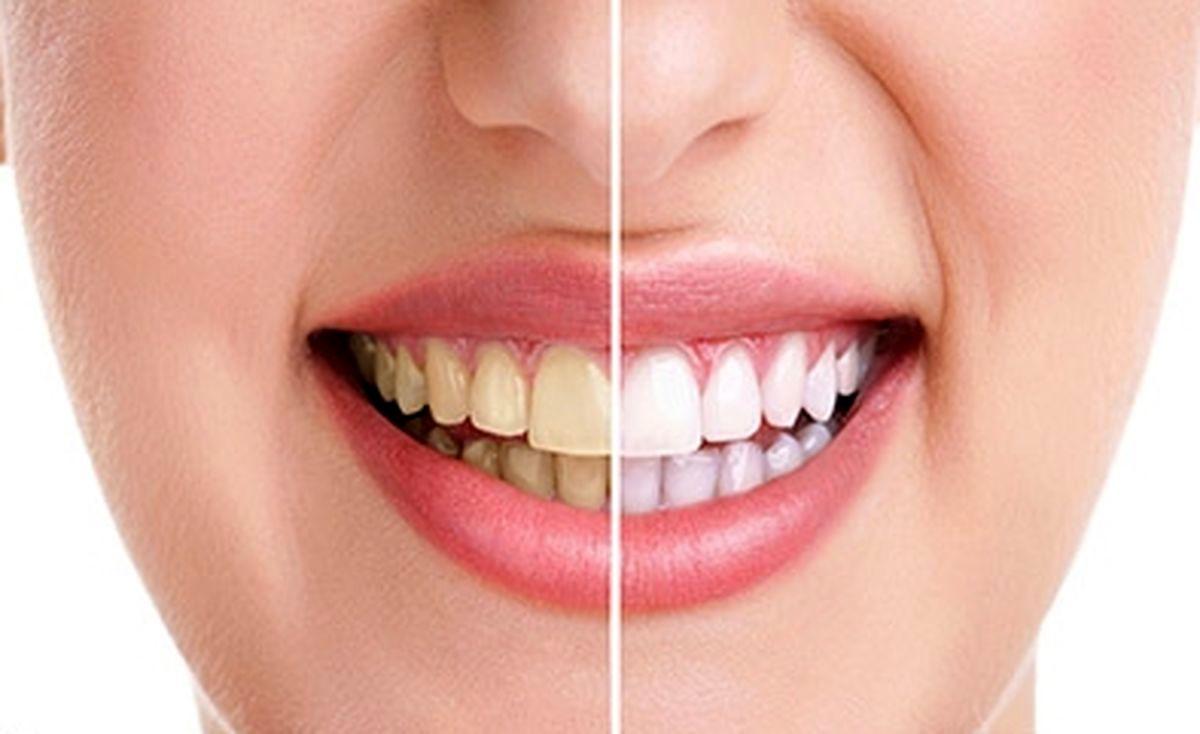 ۷ نکته کلیدی برای سفیدی دندان