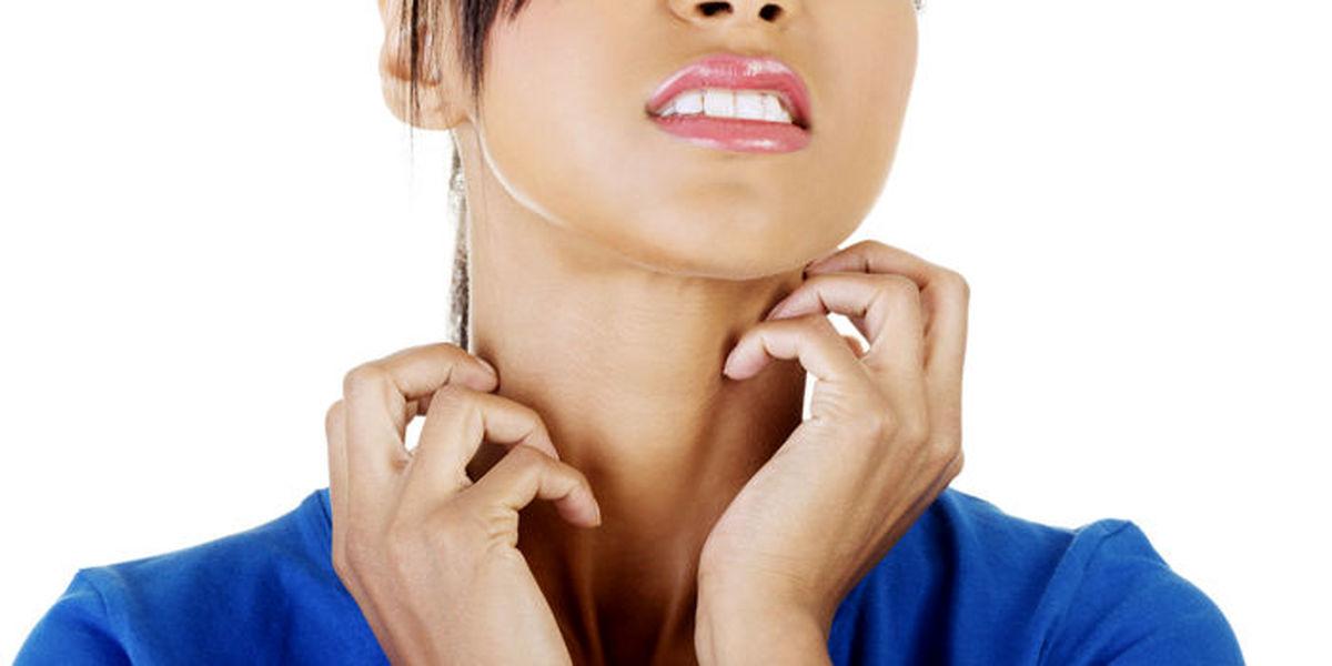 بیماری پوستی درماتیت هرپتی فرم چیست؟