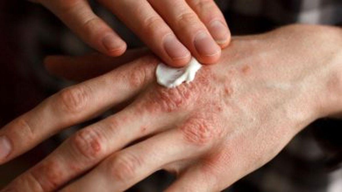 باشایع ترین بیماری های پوستی آشنا شوید
