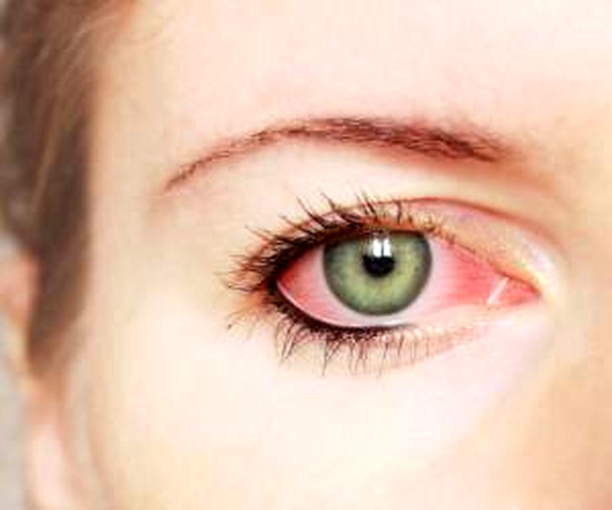 این ۱۱ علت چشم  درد را حتما جدی بگیرید