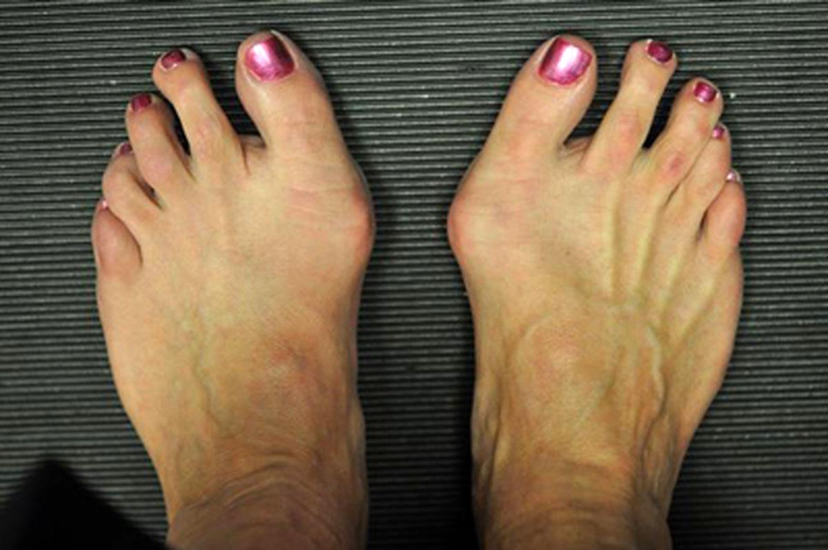 علت انحراف شست پا چیست؟+راه درمان