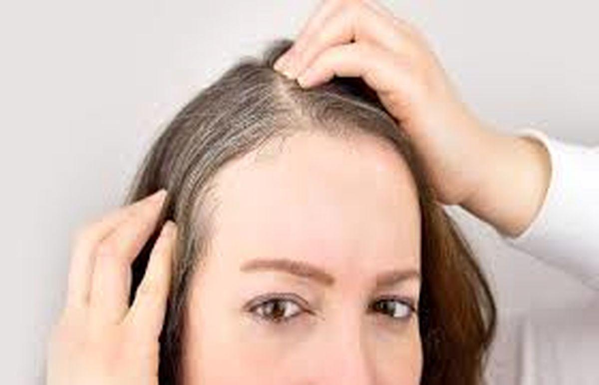 دلیل سفیدی موی ناگهانی جوانان از چیست ؟