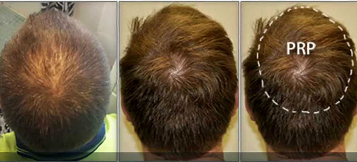 از ریزش مو در مردان چه می دانید؟ + راه های درمان
