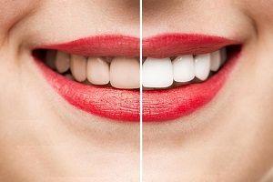 پیشگیری از جرم دندان با چند روش طبیعی