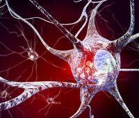 بیماری پارکینسون چیست؟