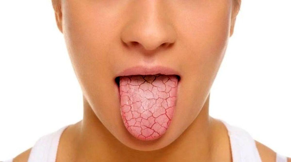 رایج ترین علل خشکی دهان را بشناسید
