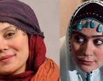 چهره آرام جعفری قبل و بعد از عمل زیبایی   عکس همسر آرام جعفری