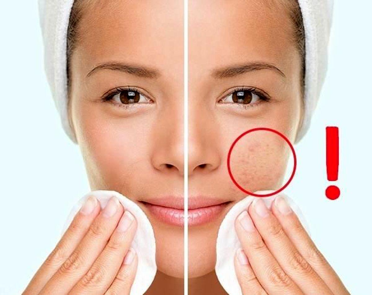 با این چند راهکاره مناسب پوستتان را شاداب کنید