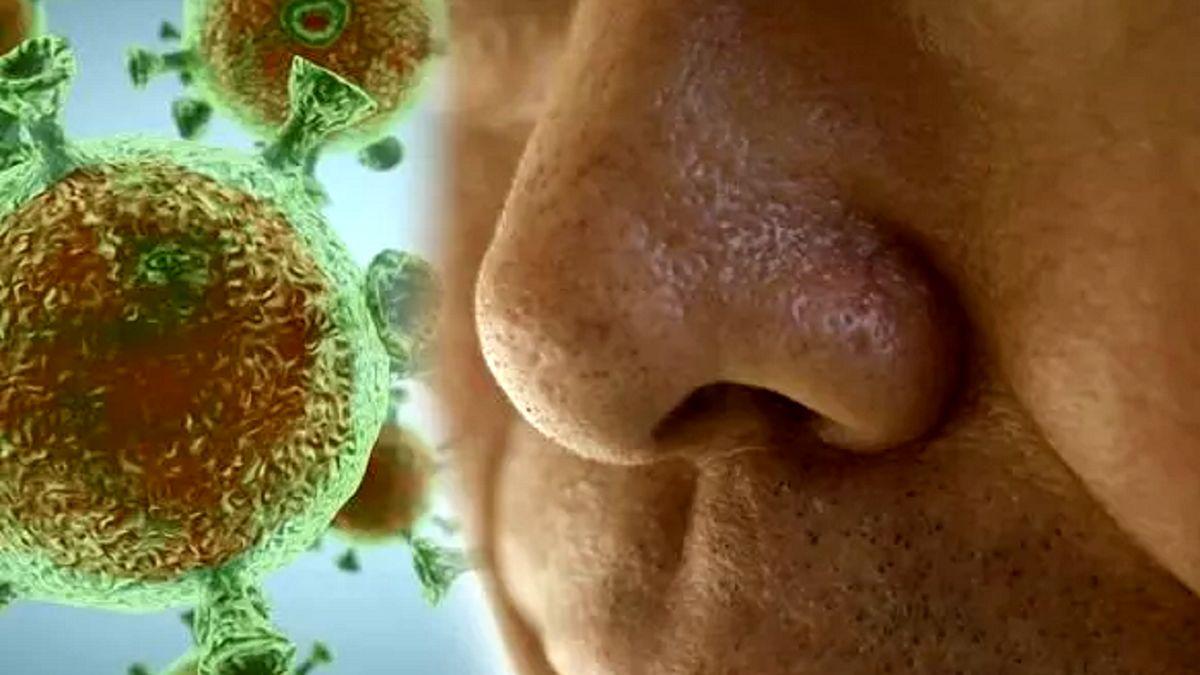 کرونا | علامتی که میتواند نشانه ابتلا به ویروس کرونا باشد
