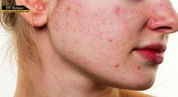 صابون گیاهی سیندرلا، بهترین درمان جوش و لک های پوستی
