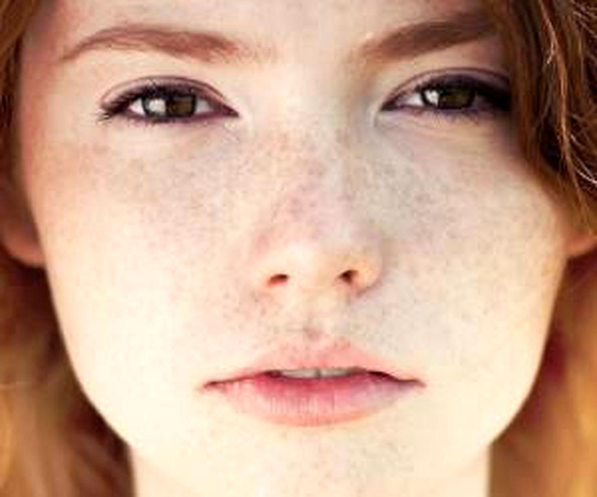 درمان لک های پوست صورت را با این چند ترکیب ساده از بین ببرید