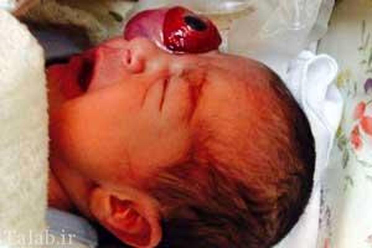 یک نوزاد با چشم بیرون از حدقه متولد شد